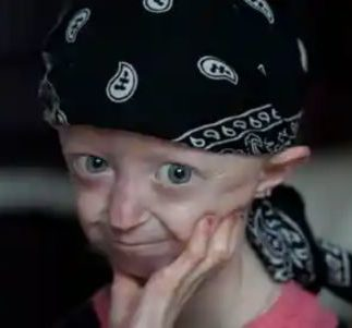 FEATURES – Progeria